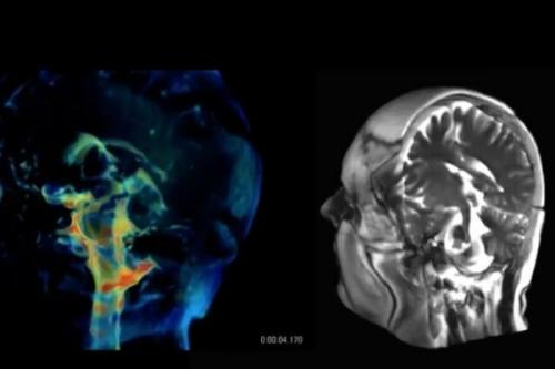 فناوری جدید برای تصویربرداری 3 بعدی از مغز